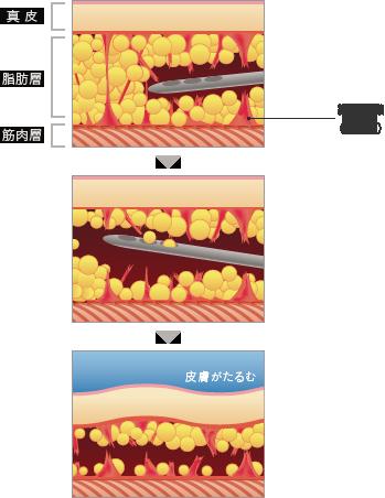 従来の脂肪吸引 施術の流れ