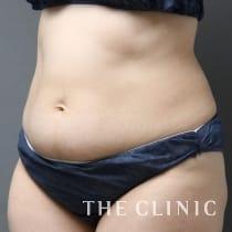 腹部 44歳/女性 Before