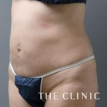 腹部 44歳/女性 After