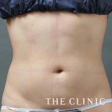 腹部 36歳/女性 After