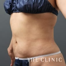 腹部 48歳/女性 After