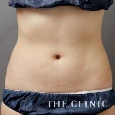 腹部 22歳/女性 After