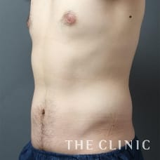 腹部 28歳/男性 After