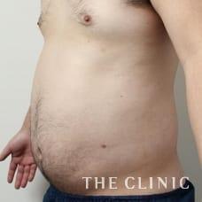 腹部 29歳/男性 Before
