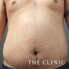 腹部 33歳/男性 Before