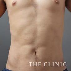 腹部 33歳/男性 After