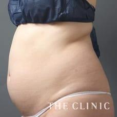 腹部 32歳/女性 Before