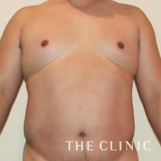 腹部 46歳/男性 Before