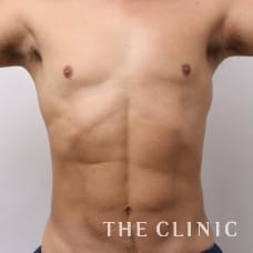 腹部 46歳/男性 After