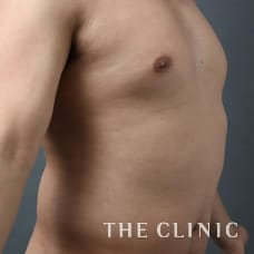 腹部 34歳/男性 Before