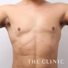 胸部 47歳/男性 After