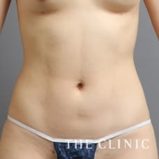 腹部 27歳/女性 After