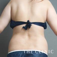腹部 23歳/女性 Before