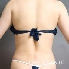 腹部 39歳/女性 After