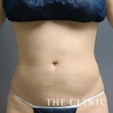 腹部 32歳/女性 After