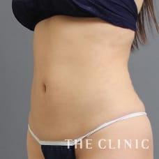 腹部 24歳/女性 After