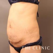 腹部 48歳/女性 Before