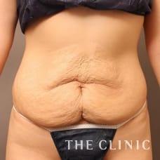 腹部 28歳/女性 Before