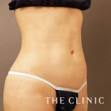 腹部 40歳/女性 After