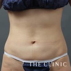 腹部 29歳/女性 After
