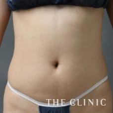 腹部 33歳/女性 Before