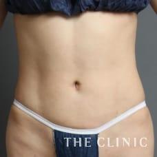 腹部 33歳/女性 After