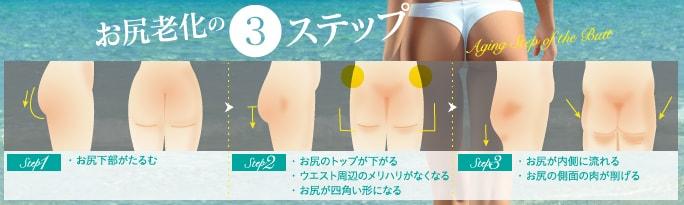 ベイザー脂肪吸引:お尻の老化レベル