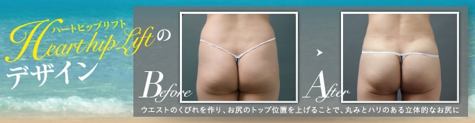 ベイザー脂肪吸引:ハートヒップリフトで四角いお尻を改善した症例