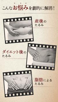 ベイザー脂肪吸引:産後やダイエット後の「お腹のたるみ」を解消