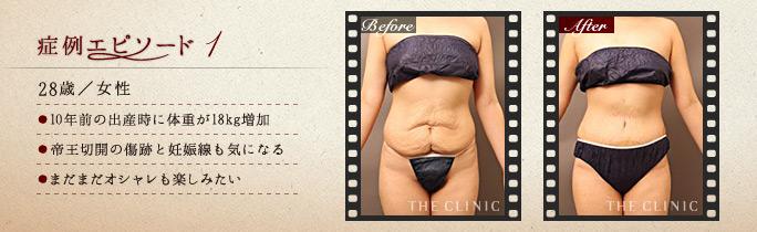 ベイザー脂肪吸引:産後のお腹のたるみを改善した症例