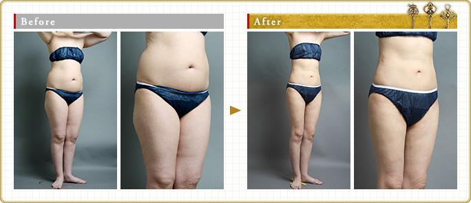 全身脂肪吸引のモニター症例写真:女性編
