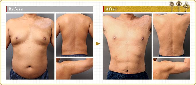 全身脂肪吸引のモニター症例写真:男性編
