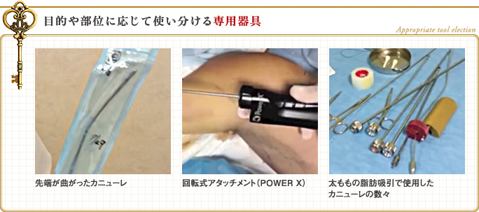 全身脂肪吸引で失敗しない鍵 ②:適材適所の専用器具