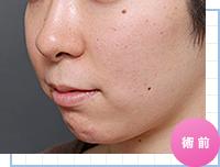 顔の脂肪吸引:術前