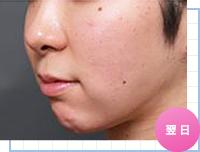 顔の脂肪吸引:手術翌日