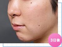顔の脂肪吸引:手術3日後