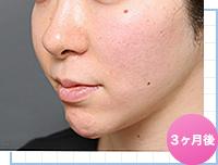 顔の脂肪吸引:手術3ヶ月後