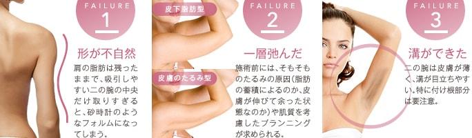 二の腕脂肪吸引の失敗③ 溝ができた